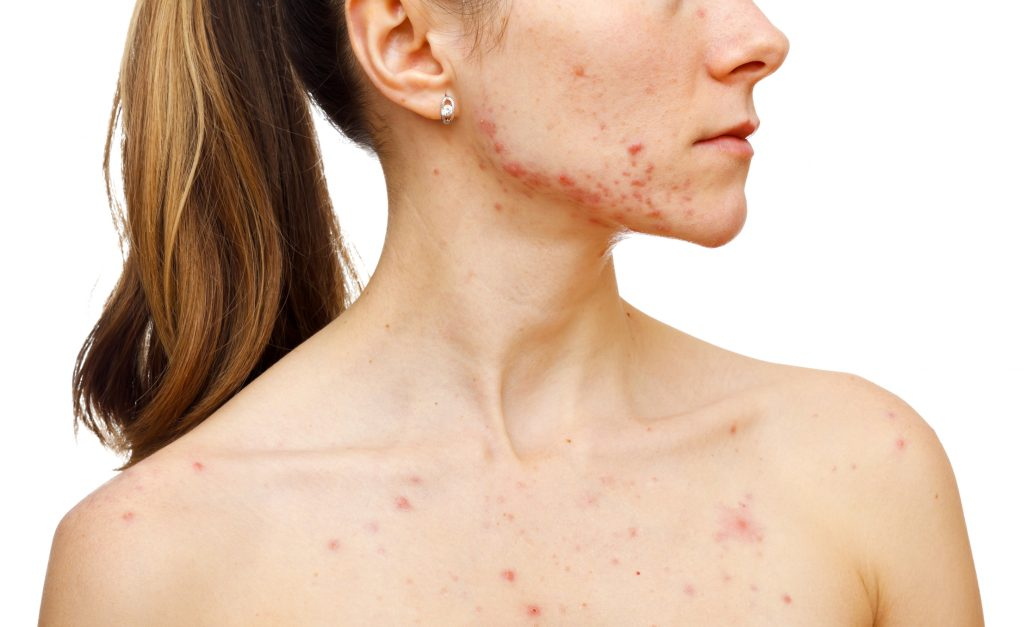 Acne Prone Skin Conditions