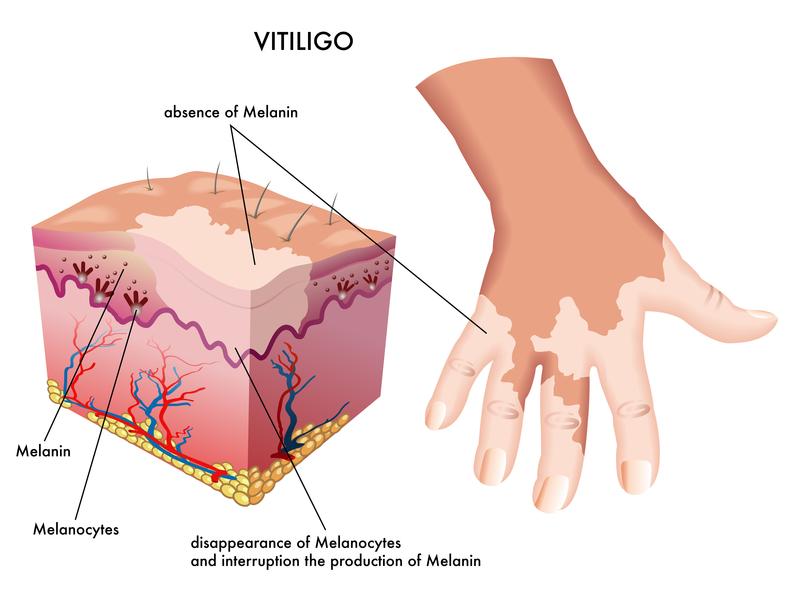 Vitiligo and the sun