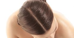 Melanoma of the scalp skin cancer