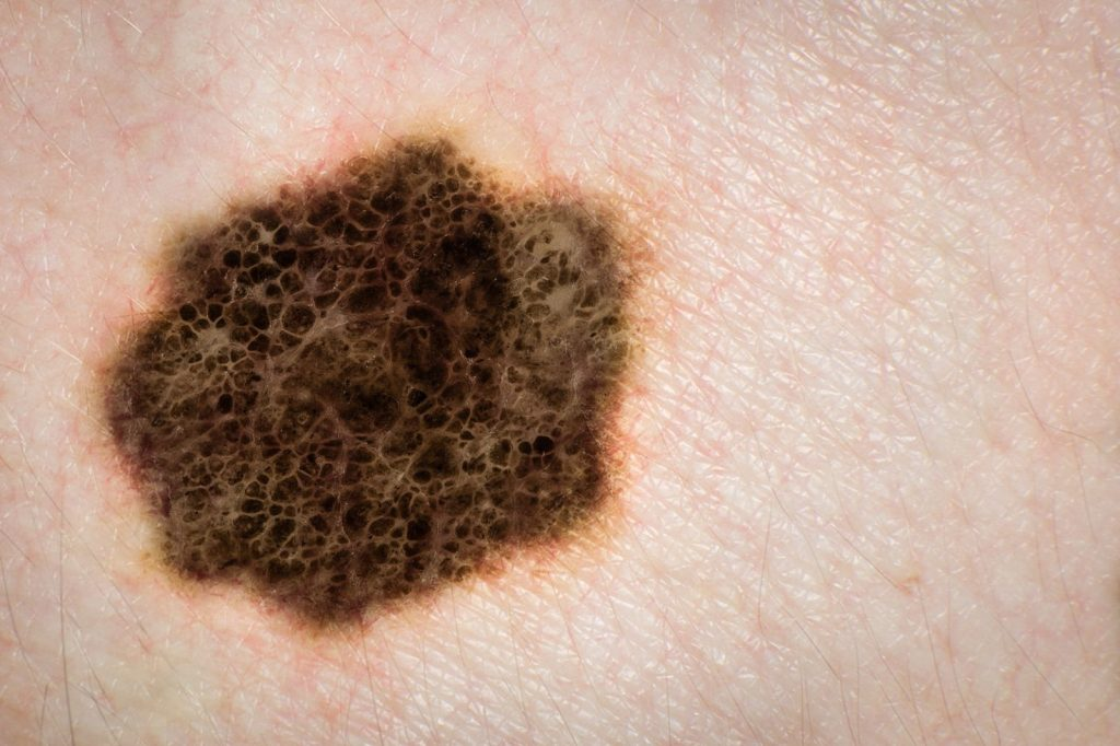 back to basics with melanoma
