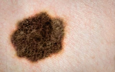 Back to Basics About Melanoma